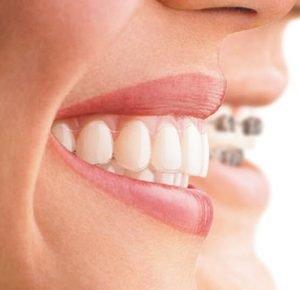 adult aligners braces invisalign straight teeth