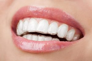 Invisalign Braces For Adults | Smiles First Dental