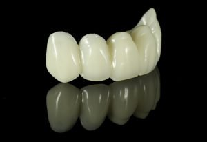 Smiles First Dental | Dental Crowns and Bridges | Dentist Northmead