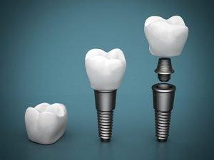 Smiles First Dental   Dental Implants   Dentist Northmead
