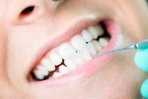 Smiles First Dental | Gum Disease | Dentist Northmead