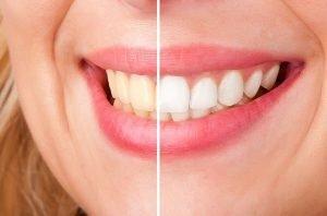 Smiles First Dental | Teeth Whitening | Dentist Northmead