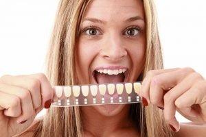 Smiles First Dental | Veneers Dentist Northmead