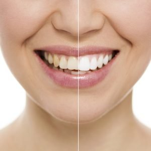 Cosmetic dentistry for a beautiful smile