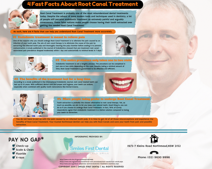 4 Fast Facts About Root Canal Treatment