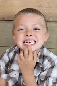 Tooth Loss And Its Consequences