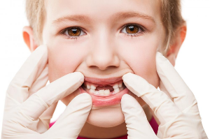 Types and Causes of Teeth Cavities