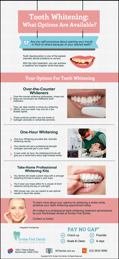 Tooth-Whitening-What-Options-Are-Available