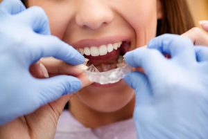 Invisalign Braces For Adults