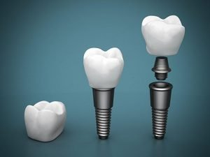 Smiles First Dental | Dental Implants | Dentist Northmead