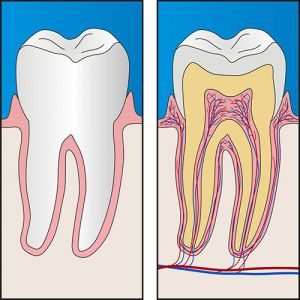 Smiles First Dental   Root Canal Treatment   Dentist Northmead