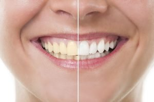 Top 4 Home Remedies for Yellow Teeth