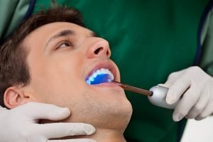 Smiles First Dental | Fissure Sealants | Dentist Northmead