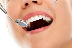 Smiles First Dental | Tooth Fillings | Dentist Northmead