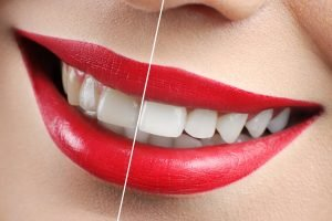 Whitening Your Smile Were Partners Northmead