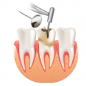 Root Canal Treatment: What do I need to know?