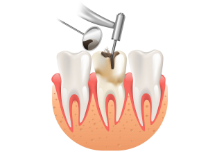 root-canal-treatment-what-do-i-need-to-know